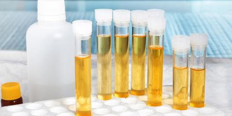 How Does Urinalysis for Drug Testing Work?, Artesia, New Mexico