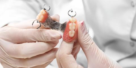 A Restorative Dentistry Guide to Tooth Replacement Options, Rhinelander, Wisconsin