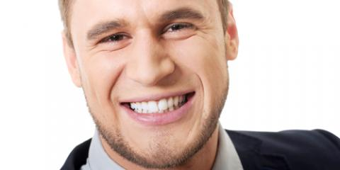 Cosmetic Dentistry Expert Explains 3 Benefits of Professional Teeth Whitening, Olive Branch, Mississippi
