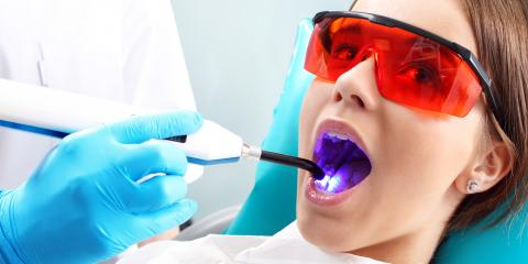 Top 4 Benefits of Laser Dentistry, Kalispell, Montana