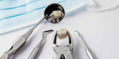 What to Expect During a Tooth Extraction & the Recovery Afterward, Riverside, Ohio