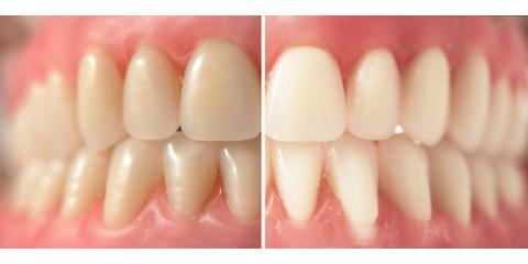 The Life-Changing Advantages of Teeth Whitening, Meriden, Connecticut