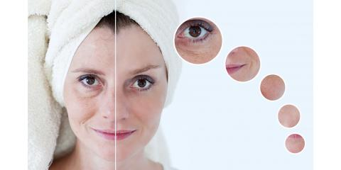 A Decrease in ​​​​​​​​​​​​​​Hyaluronic Acid Can Cause Skin Problems, Oakbrook Terrace, Illinois