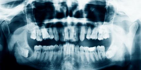 Why Dental X-Rays Are Necessary, St. Peters, Missouri
