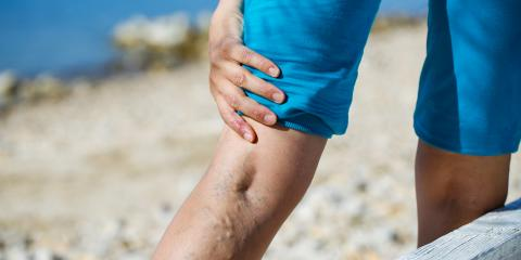 What Treatments Are Available for Varicose Veins?, Mountain Home, Arkansas