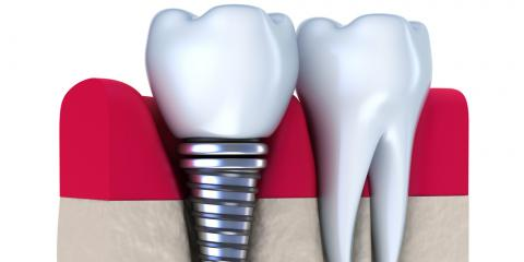 Dental Implants Explained: How Do They Work?, Springdale, Ohio