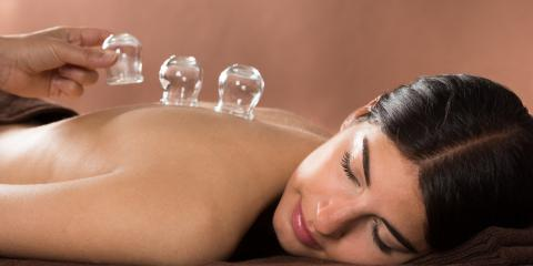 How Cupping Can Help Depression , Nyack, New York