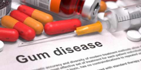 What Are the Common Types of Gum Disease?, Montgomery, Ohio