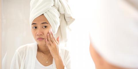 Why Do Adults Get Acne?, Kailua, Hawaii