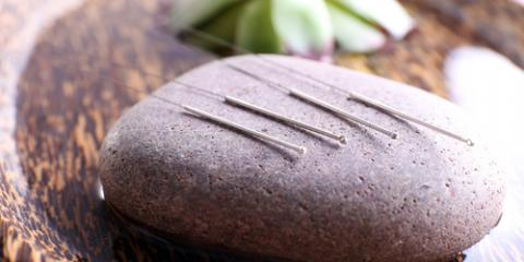What Will Acupuncture From a Licensed Practitioner Do for Me?, Groton, Connecticut