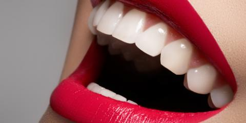 3 Types of Fillings to Ask Your Dentist About, Hayward, Wisconsin