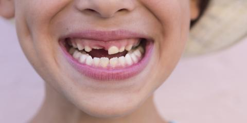Kid's Dental Care: Should I Help Pull Out My Child's Loose Tooth?, Anchorage, Alaska