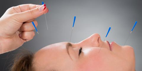 3 Advantages of Acupuncture Treatment, Denver, Colorado