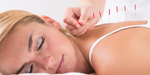 3 Advantages of Acupuncture Over Pain Medication, Webster, New York