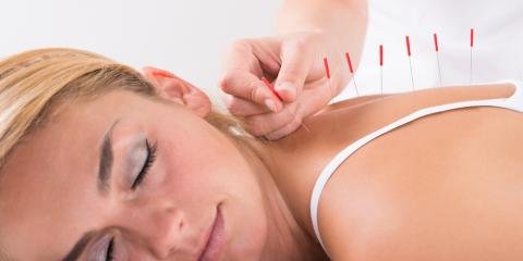 Acupuncture for Pain Relief, Manhattan, New York