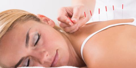 3 Reasons to Try Acupuncture for Chronic Pain, Webster, New York