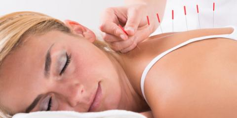How Can Acupuncture Treat Chronic Pain?, Reno Southeast, Nevada