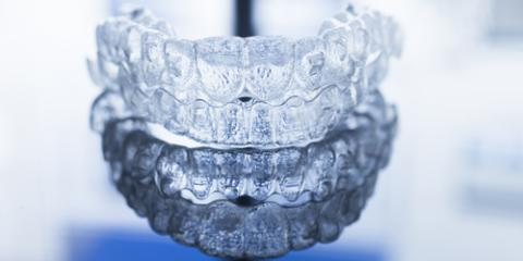 The History & Benefits of Clear Braces, Oxford, Ohio