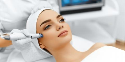 3 Powerful Benefits of Microdermabrasion, Hartford, Connecticut