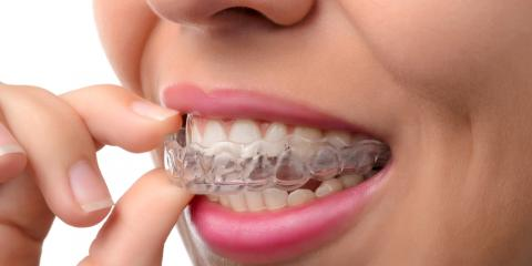 3 Invisalign Care Tips You Should Know, Richmond, Kentucky