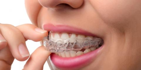 The Most Commonly Asked Questions About Invisalign®, Wausau, Wisconsin