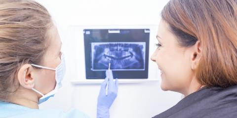 Why Is Wisdom Teeth Removal Necessary?, Orange, Connecticut