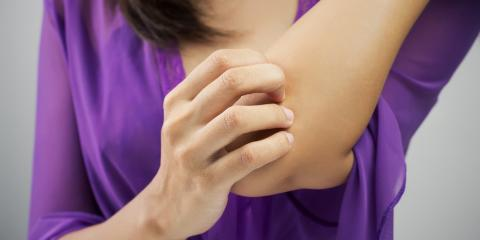 Dermatologists Explain 3 Causes of Eczema, Asheboro, North Carolina