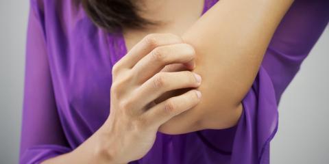 Dermatologists Explain 3 Causes of Eczema, Asheboro, North Carolina