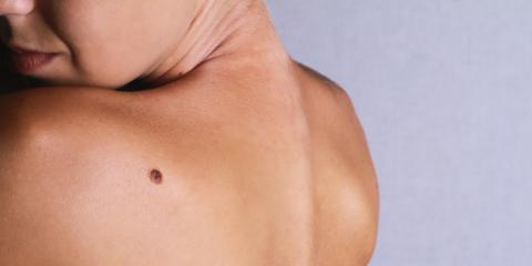 Should You Be Concerned About a New Mole on Your Body?, Albemarle, North Carolina