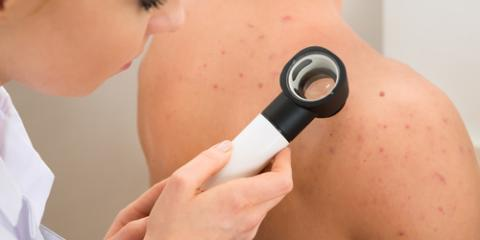 Dermatologist Shares 5 Tips to Clear Up Back Acne, Pinehurst, North Carolina