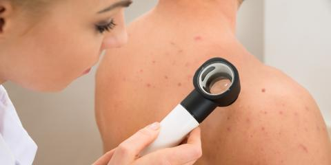 What You Need to Know About Cystic Acne, Miami, Florida