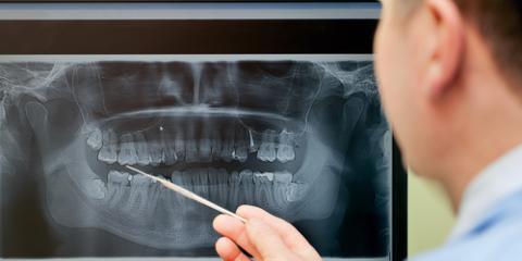 Digital X-Rays: Their Use & Safety in Dental Practice, Miami, Ohio