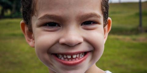 A Dentist Reveals 4 Ways to Tell if Your Child Needs Braces, Anchorage, Alaska