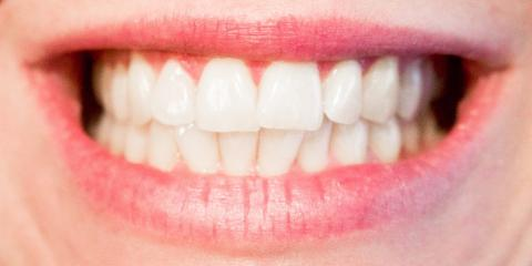 Does Teeth Whitening Have Any Potential Side Effects? , Meriden, Connecticut