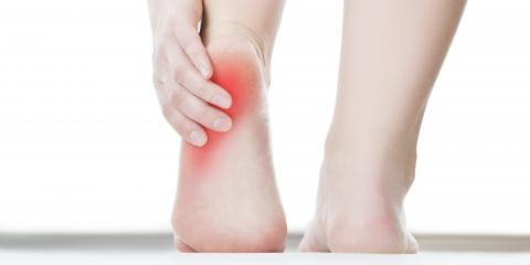 What Exactly Is Plantar Fasciitis?, Perinton, New York