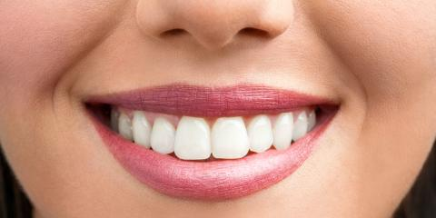3 Different Types of Braces & How to Choose What's Right for You, Dumas, Texas