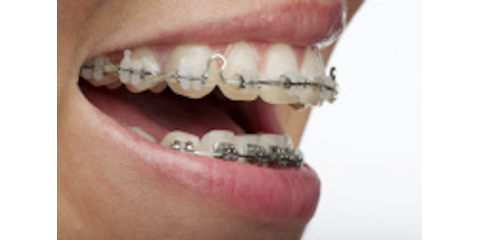How to Choose the Right Type of Braces for You in Dumas, Dumas, Texas