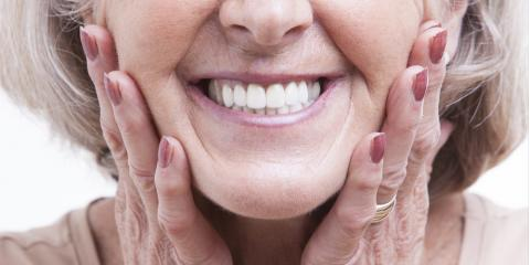 3 Reasons to Maintain Your Dentures, Concord, North Carolina