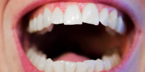 What Can You Do About Receding Gums? Ask Hamilton's Dentist, Hamilton, Ohio