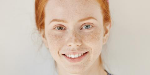 What Is Heterochromia? Dothan Eye Doctor Explains, Dothan, Alabama
