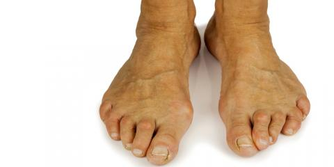 Bunion Removals: Who Needs Them & How Are They Performed?, Naugatuck, Connecticut