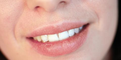 Oahu Dentists Discuss Dry Mouth & 3 Ways to Treat It, Honolulu, Hawaii