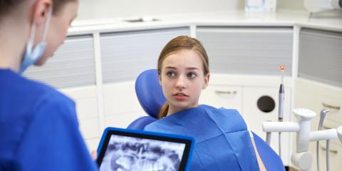 How a Pediatric Dentist Protects Your Child From Cavities, Anchorage, Alaska