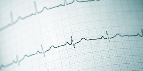 The Long Term Career Prospects For An EKG Technician Queens New York