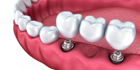 Frequently Asked Questions About Dental Implants, Elk Grove, California