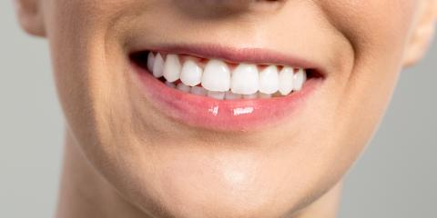 What Are Your Options for Teeth Whitening?, Elk Grove, California