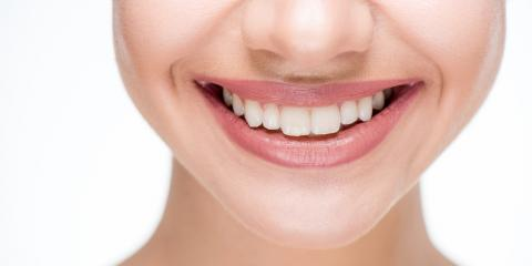 Teeth Whitening: Top 4 Tips to Get a Bright Smile, West Haven, Connecticut
