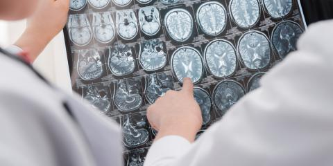 Therapy Experts Explain Which Parts of the Brain Are Affected by Trauma, Elyria, Ohio