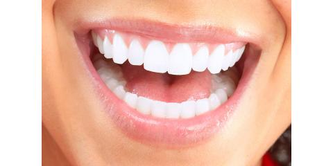 Differences between Periodontitis and Gingivitis, Manhattan, New York