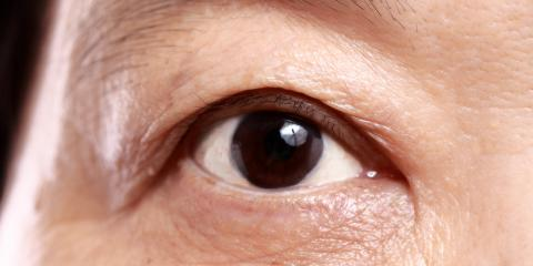 Understanding Eye Care: How Omega-3 Fatty Acids Fight Against Dry Eyes, Bridgeport, Connecticut